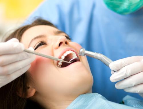 Una scarsa igiene orale è tra i maggiori responsabili della carie